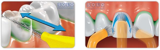 Soloprophylaxe mit Solostix und Solobürste